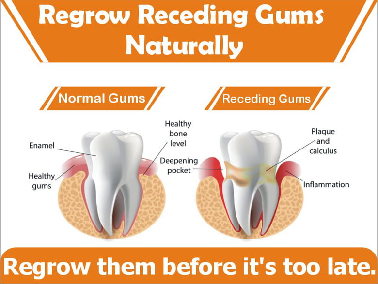 how to know if gums are receding