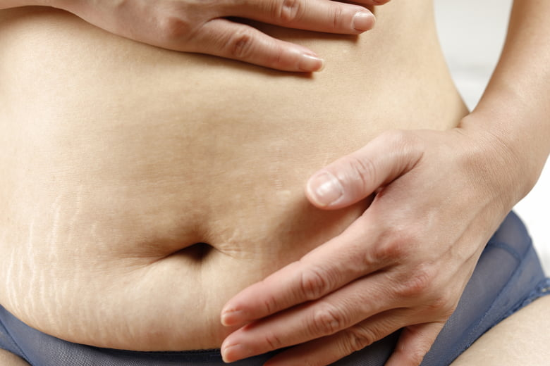 10 things to know about stretch marks after pregnancy